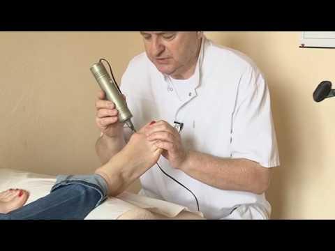 Koślawe zniekształcenie wideo leczenia masaż stóp