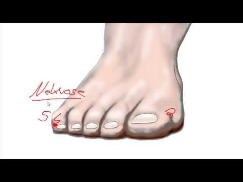 Der krankhafte Ansatz zwischen den Fingern der Beine