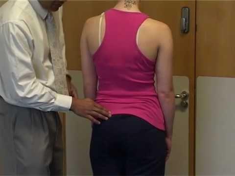 Scoliosis a bambini 2