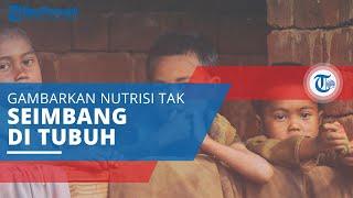 Malnutrisi, Gambarkan Orang yang Makan dengan Cukup tapi Nutrisinya Tidak Seimbang