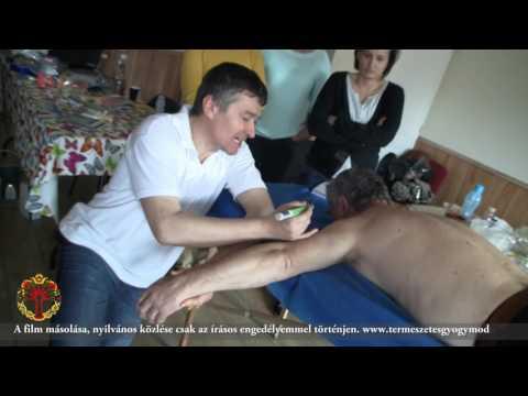 Prostatitis és emberi súly