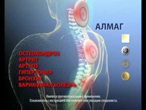 Zervikale Osteochondrose Symptome und Behandlung von