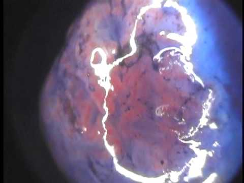 Cancer ovarian uterus