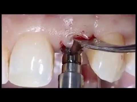Implanty 280 ist es der Umfang der Brust