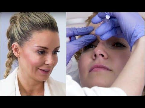 Jak usunąć plamy starcze na twarzy receptur