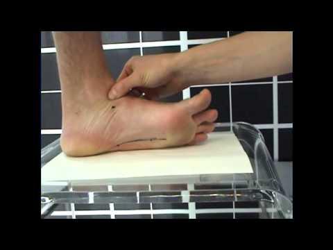 ศัลยกรรมกระดูกรองเท้ากับเท้า valgus