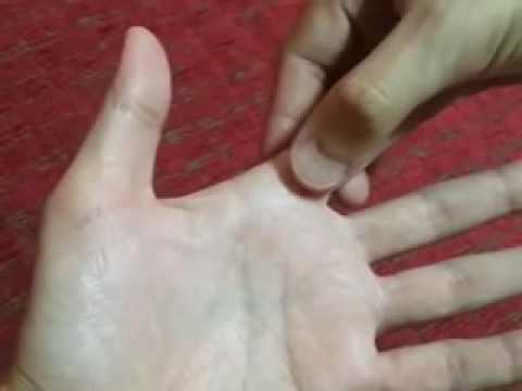 เส้นเลือดขอดอยู่ในมือของครีมที่
