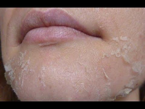 Пигментные пятна на лице и контрацептив