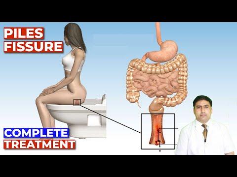 Modern módszerek a prosztatagyulladás kezelésére