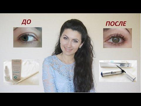 Examinări oculare