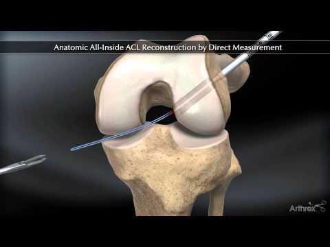 Cum să alinați durerea cu guta în articulații