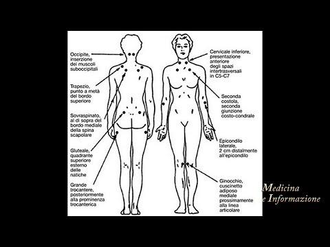 Condroitina glucosamina per le articolazioni