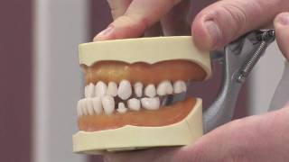 Dental Health & Information : Facts About Braces