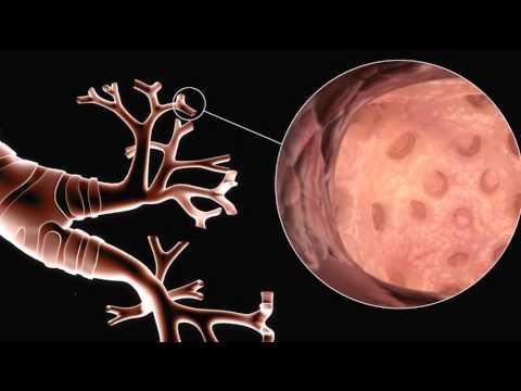 Eczema di metodi nazionale