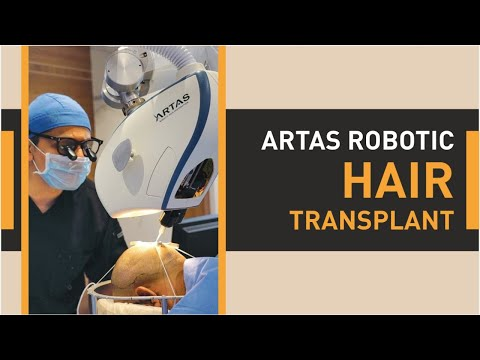 Hair Transplant in Ahmedabad    Best Clinic & Cost for Hair Transplant in Ahmedabad