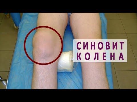 Заболевание шейного отдела позвоночника врач