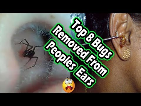 Top 10 Creatures And Bugs Removed From Peoples Ears(Spiders, Ants and Other Bugs)