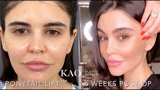 KAO Plastic Surgery - The Best Facelift Before And After - Ponytail Lift - Happy Valentine's Day! ❤️