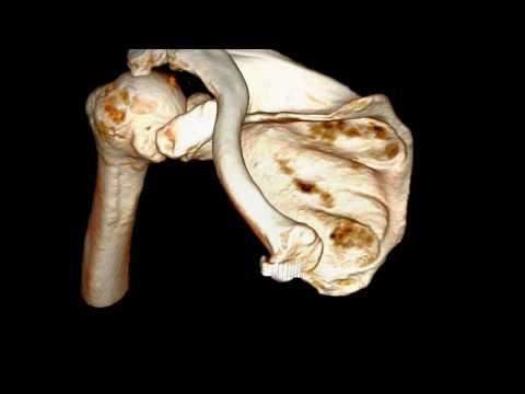 Zapalenie stawu ramiennego z górną migracją głowy koścu ramiennej, wraz z zmianami zwyrodnieniowymi stawu barkowo - obojczykowego