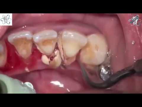 Dental scaling. Plaque removed.Dental.calculus.스케일링.تنظيف اللثه والاسنان