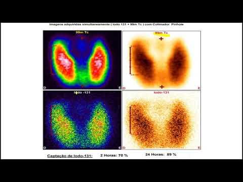 Cum să restabiliți vederea cu un laser