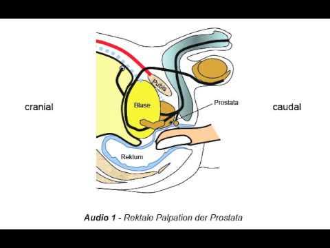 Die Folgen der Erweiterung der Prostata
