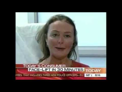 Soft Tissue Dermal Fillers & Injectables on the Today Show | SpaMedicaTV    Video Thumbnail