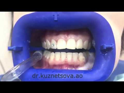 Установка скайса (страза) на зуб