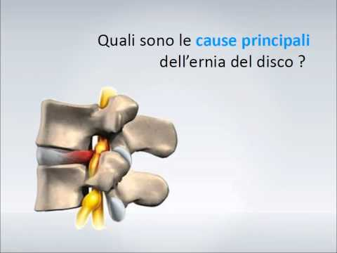 Come pompare la stampa osteocondrosi