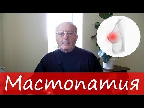 Мастопатия (фиброзная, диффузная, кистозная).  Лечение молочной железы  – Юзеф Криницкий