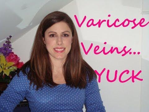 Varices ดำเนินการผ่าตัด