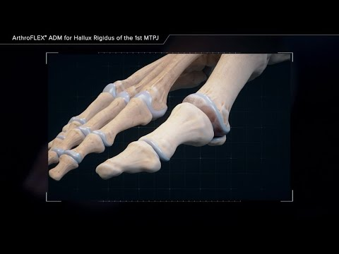 Artroza distrofică a articulațiilor