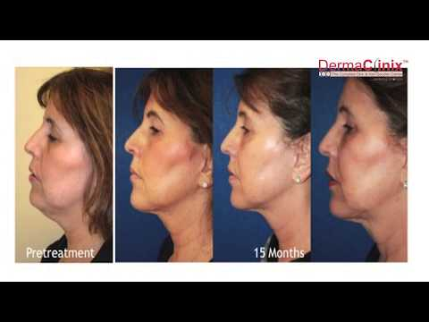 Experience the magic of ThermiRF Skin Tightening Treatment in India @DermaClinix