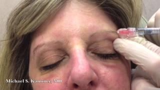 Improving Eyelids Without Surgery