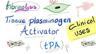 Clinical Uses of Tissue Plasminogen Activator (tPA)