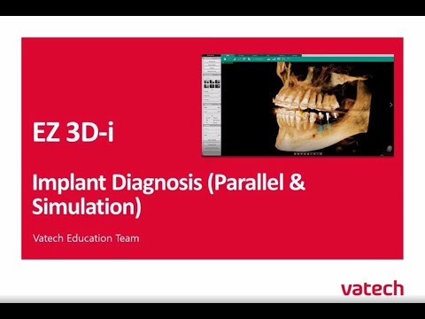 Implant Diagnosis (Parrellel Simuation with Markers)