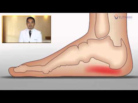การกำจัดของกระแทกบนเท้าของนิ้วเท้าใหญ่