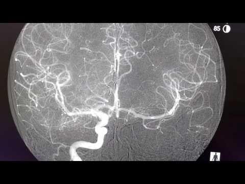 Malattia articolare sacrale