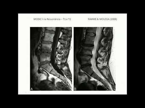 Artrita purulentă a articulației