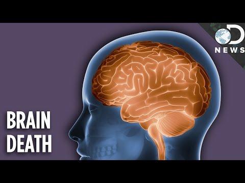 Is A Brain Dead Person Actually Dead?