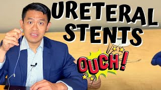 URETERAL STENTS FOR KIDNEY STONE SURGERY | How to remove ureteral stents at home