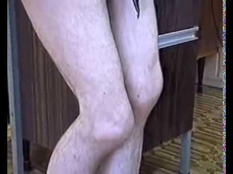 Рисовая чистка суставов при подагре