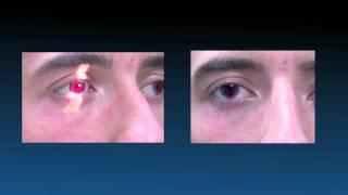 Achromatopsia - New Options in Contact Lenses
