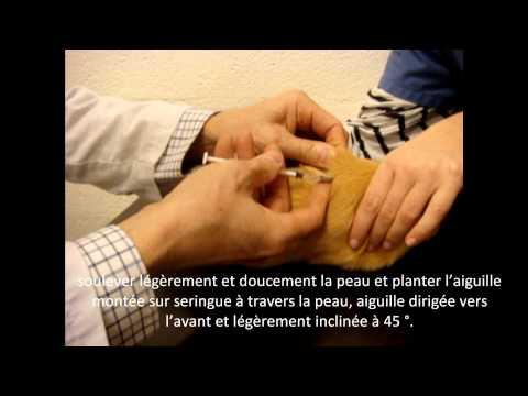 La médecine et la santé les helminthes