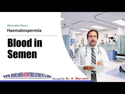 haematospermia kezelése népi jogorvoslat, hogyan kell kezelni haematospermia otthon