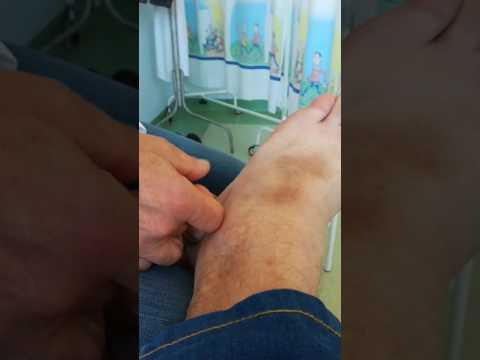 Streszczenie Choroba zwyrodnieniowa stawu kolanowego