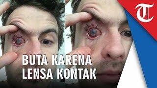 Pria Ini Alami Kebutaan karena Kerap Gunakan Lensa Kontak Mata, Ini Dia Penyebabnya