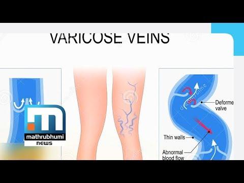 Thrombophlebitis di vene ipodermiche di un trattamento di stinco