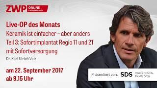 Dr. Karl Ulrich Volz Live-OP: Sofortimplantat Regio 11 und 21 mit Sofortversorgung