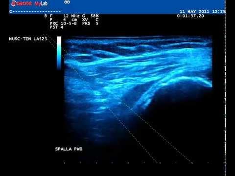 Radiocarpale codice artrite congiunta ICD 10
